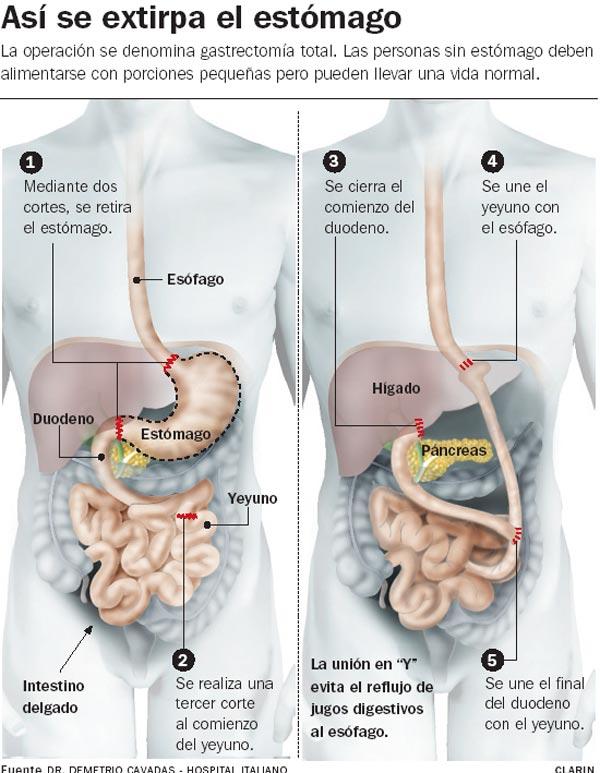 Gastrectomia03